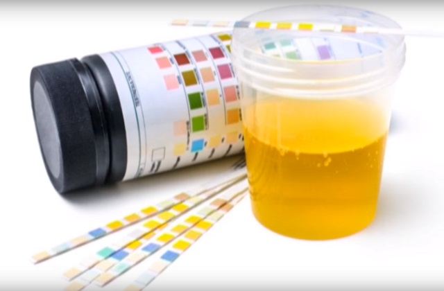 Бактериоскопический метод исследования мочи
