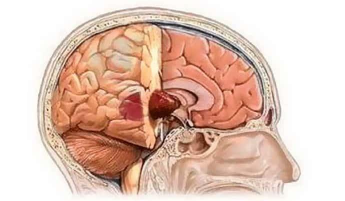 когнитивные нарушения при опухалях в мозге