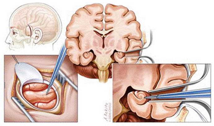 Лобэктомия при эпилепсии