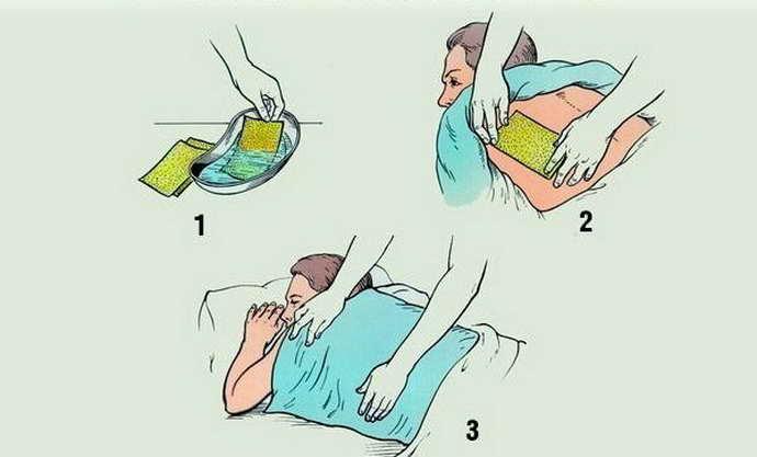 как правильно ставить горчичники при шейном остеохондрозе