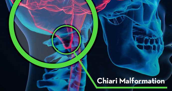 Прианомалии Арнольда Киаридиагностируется возникновение комплекса синдрома