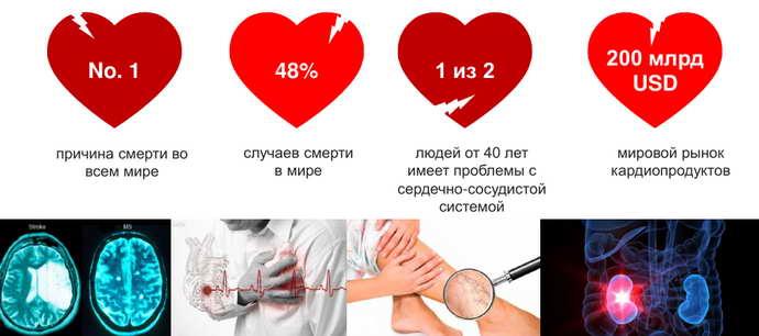 Нарушения, связанные с работой сердечнососудистой системы и альцгеймер