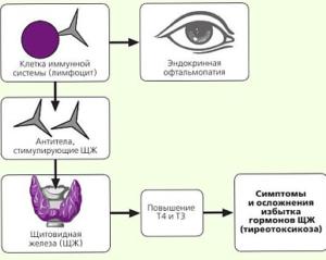 Причины болезни схема