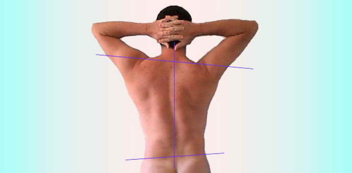 когда показано ношение пояса для поясницы при остеохондрозе