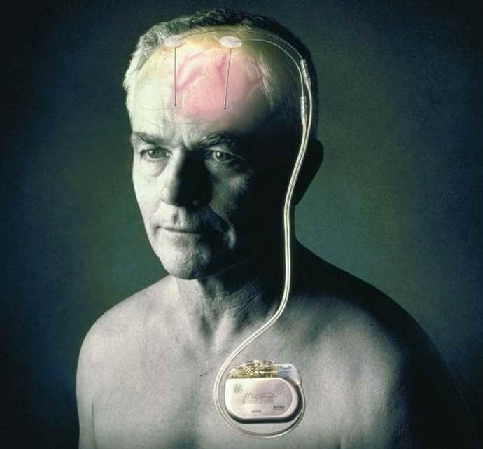 Электростимулятор при болезни Паркинсона как жить дальше