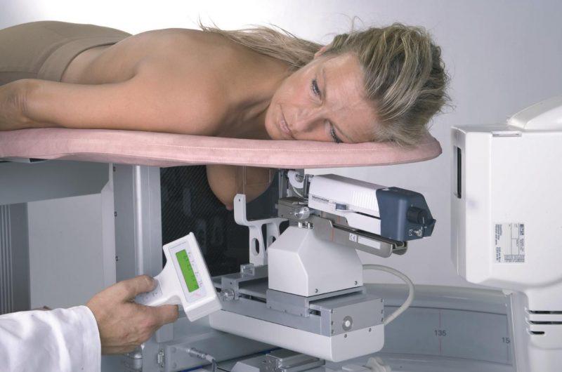 Диагностика рака молочной железы