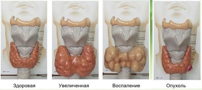 узи щитовидной железы расшифровка норма