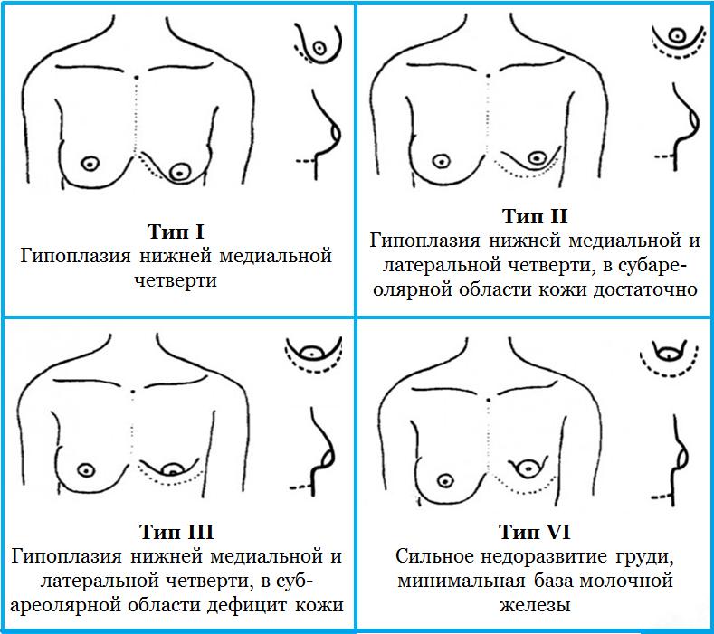 Асимметрия молочных желез