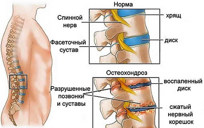 защемление нерва в тазобедренном суставе причины