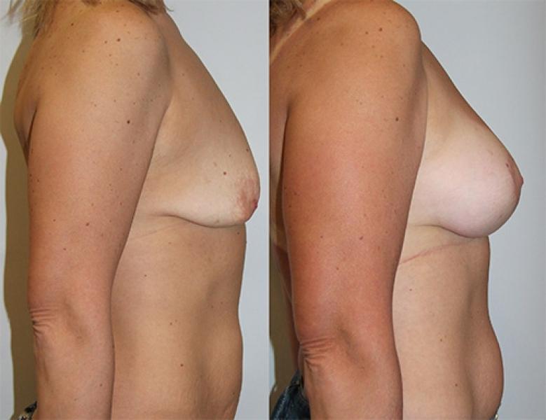 Подтяжка грудных желез