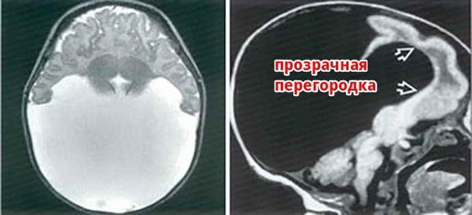 киста прозрачной перегородки головного мозга причины