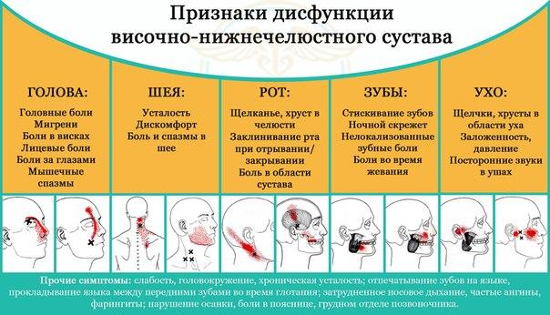 Признаки дисфункции челюсти