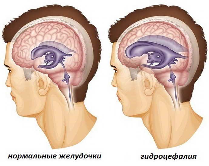 аместительная наружная гидроцефалия головного мозга виды