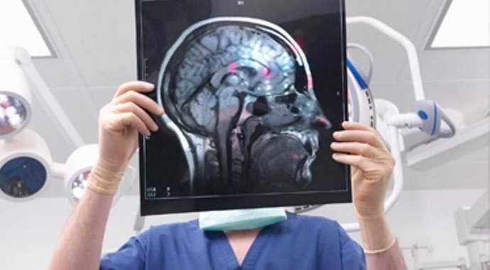 дисциркуляторная энцефалопатия 3 степени причины