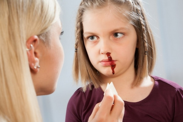 Кровотечение у детей