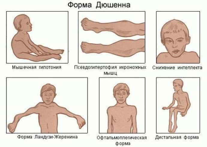 Как рапзвивается миопатия дюшенна