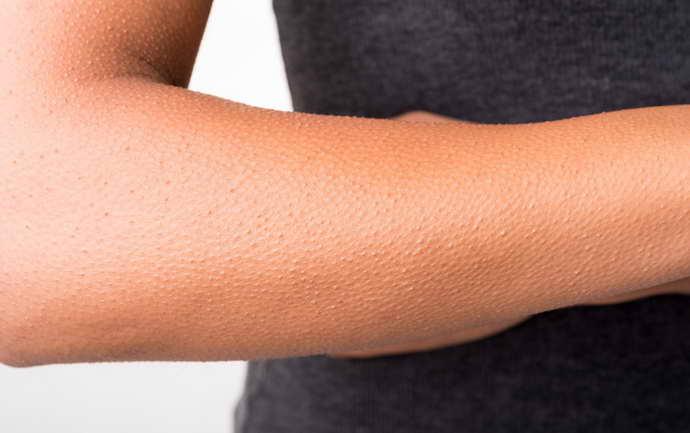 симптомы онемения лица при шейном остеохондрозе