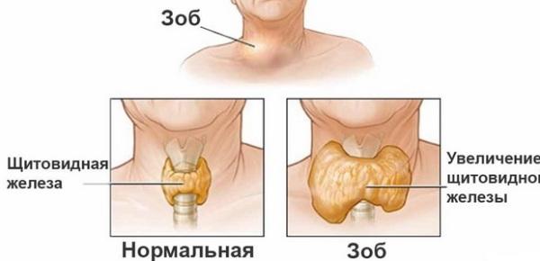 нормальная и увеличенная щитовидная железа