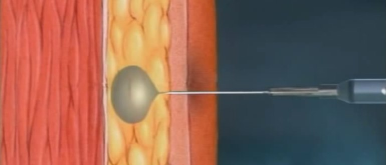 Прививка БЦЖ вводится под кожу