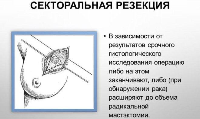 секторальная резекция фиброаденомы молочной железы