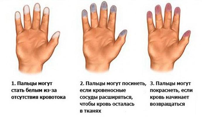 Болезни при которых немеет мизинец на правой руке
