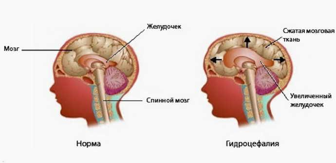 аместительная наружная гидроцефалия головного мозга