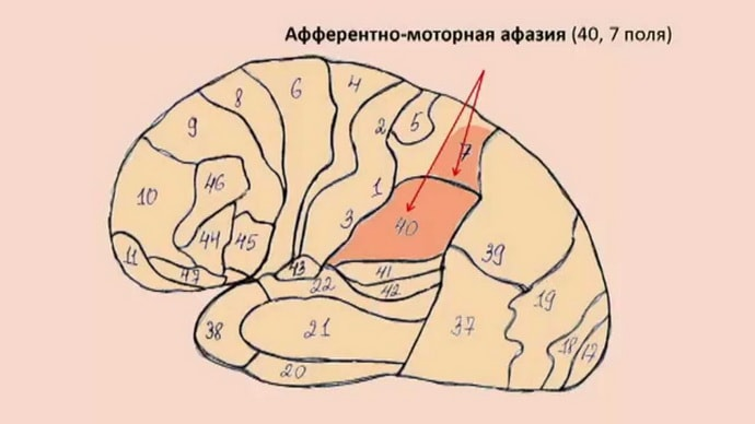 афазия это заболевание нервной системы
