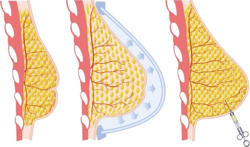 Липофилинг молочных желез