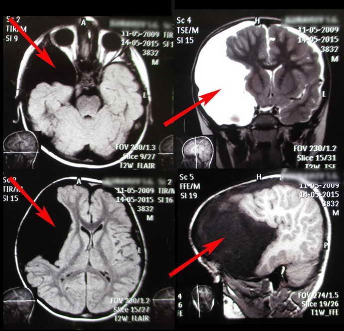мрт головного мозга ребенку что показывает