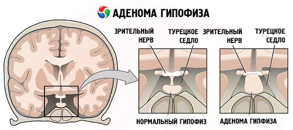 аденома гипофиза симптомы у женщин лечение прогноз