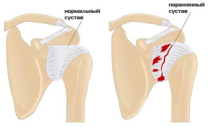 какие имеет формы плечелопаточный периартроз