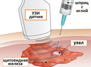 диагностика узла щитовидной железы