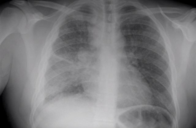 Милиарный туберкулез легких на рентгене