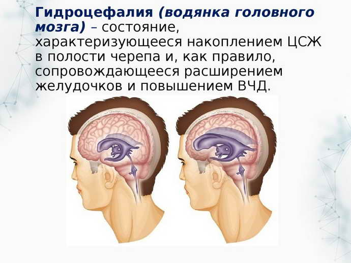 менингит последствия