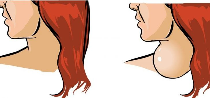узловой эутиреоидный зоб щитовидной железы