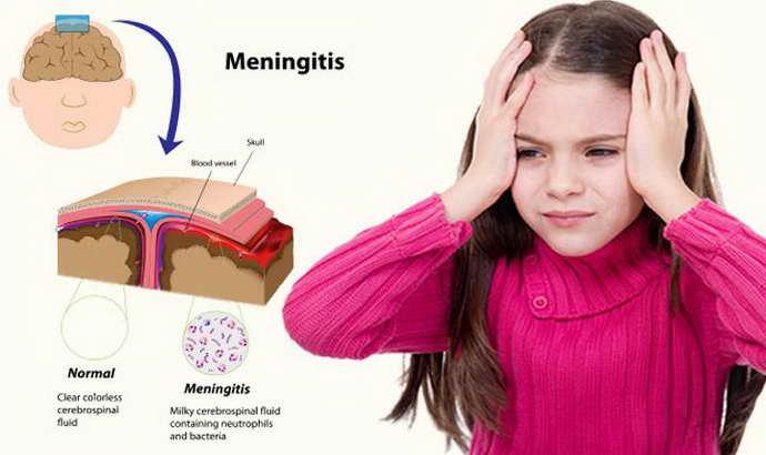 Понятие менингита