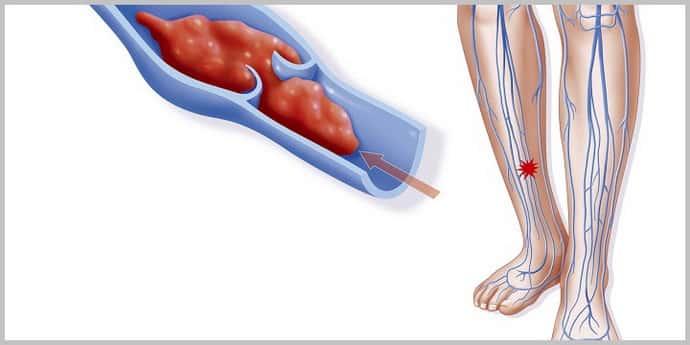Судороги после инсульта у мужчин: причины появления