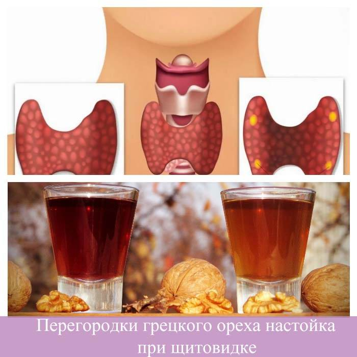 Перегородки грецкого ореха настойка при щитовидке