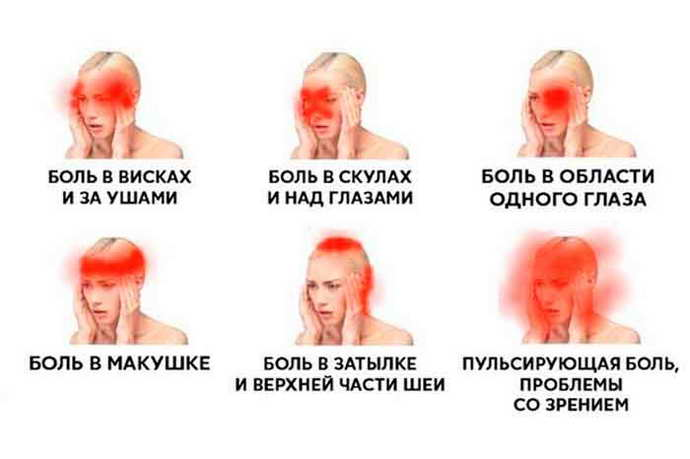 головные боли при остеохондрозе шейного отдела виды