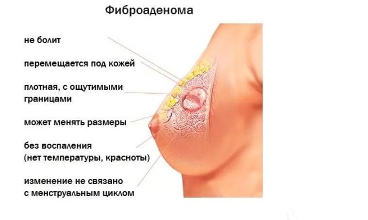 Очаговые образования молочной железы