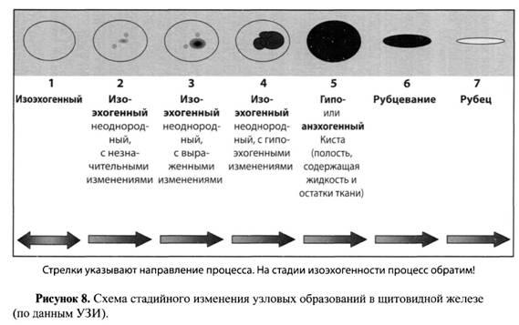 Гипоэхогенный узел щитовидной железы