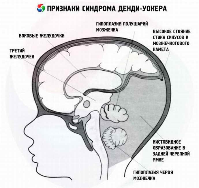 Сирингомиелия и ее виды